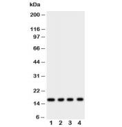 Western blot testing of Myoglobin antibody and rat samples 1: skeletal muscle;  2: heart;  3: liver;  4: intestine tissue lysate.  Predicted molecular weight ~17 kDa.