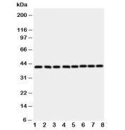 Western blot testing of Ataxin 3 antibody and rat samples 1: brain;  2: heart;  3: placenta;  and human samples 4: HeLa;  5: PANC;  6: SMMC-7721;  7: COLO320;  8: MCF-7 cell lysate. Predicted molecular weight ~41 kDa.