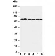 Western blot testing of B Raf antibody and Lane 1:  rat brain;  2: rat testis;  3: rat liver;  4: (h) SW620;  5: (h) COLO320;  6: (r) PC-12 cell lysate. Predicted molecular weight: 85-95 kDa.