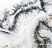 IHC-P: 53BP1 antibody testing of human intestinal cancer tissue. HIER: steamed with pH6 citrate buffer.