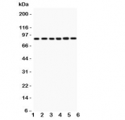 Western blot testing of IKKb antbody and  Lane 1: rat heart;  2: (r) skeletal muscle; and human samples 3: PANC;  4: MCF-7;  5: HEPG2;  6: COLO320.  Expected/observed size ~87KD