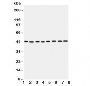 Western blot testing of PGK1 antbody; Lane 1: rat liver;  2: (r) brain;  3: (r) lung; and human samples  4: A431;  5: COLO320;  6: HeLa;  7: A549;  8: Jurkat cell lysate.  Expected/observed molecular weight ~44kDa.