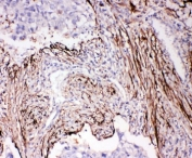 IHC-P: ADAM19 antibody testing of human lung cancer tissue