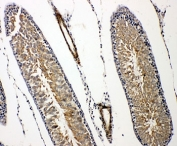 IHC-P: Prolactin Receptor antibody testing of rat testis tissue. HIER: steamed with pH6 citrate buffer.