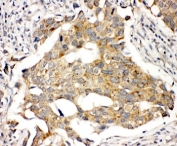 IHC-P: Prolactin Receptor antibody testing of human breast cancer tissue. HIER: steamed with pH6 citrate buffer.