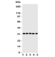 Western blot testing of Aquaporin 9 antibody and Lane 1:  mouse liver;  2: (m) lung;  3: (m) spleen;  4: (m) testis;  5: rat PC-12 lysate. Predicted molecular weight ~32 kDa.