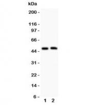 Western blot testing of Aquaporin 0 antibody and Lane 1:  mouse spleen;  2: mouse intestine; Observed size: 28-60KD, depending on level of glycosylation