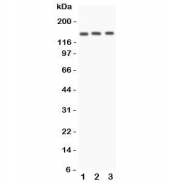 Western blot testing of Angiotensin Converting Enzyme antibody and Lane 1:  A549;  2: HeLa;  3: 22RV1 lysate.  Expected molecular weight 140-170 kDa.