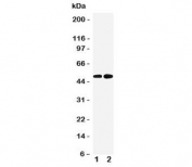 Western blot testing of Alpha 2a Adrenergic Receptor antibody and Lane 1:  human HeLa;  2: human PANC-1 cell lysate. Predicted molecular weight ~49 kDa.