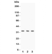 Western blot testing of Calponin antibody and human 1) HeLa, 2) Jurkat, and 3) MCF7 cell lysate. Expected molecular weight ~33 kDa.