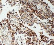 IHC-P: Apoptosis-Inducing Factor antibody testing of human lung cancer tissue