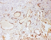 IHC-P: Adiponectin antibody testing of human lung cancer tissue. HIER: steamed with pH6 citrate buffer.