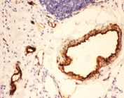 IHC-P testing of rat lung tissue. HIER: steamed with pH6 citrate buffer.