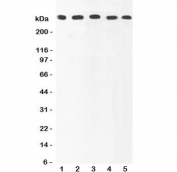Western blot testing of Ki67 antibody and Lane 1:  HeLa;  2: MCF-7;  3: COLO320;  4: HEPG2;  5: SKOV lysate.  Predicted/observed size ~350KD