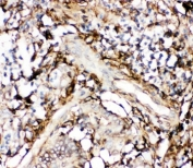 IHC-P: Annexin V antibody testing of human intestinal cancer tissue. HIER: boil tissue sections in pH6, 10mM citrate buffer, for 10-20 min and allow to cool before testing.