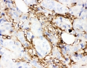 IHC-P: Annexin V antibody testing of human breast cancer tissue. HIER: boil tissue sections in pH6, 10mM citrate buffer, for 10-20 min and allow to cool before testing.