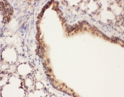 IHC-P: ALOX15 antibody testing of mouse lung tissue
