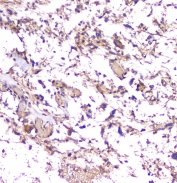 IHC staining of FFPE human glioma tissue with Amyloid beta antibody at 1ug/ml. HIER: boil tissue sections in pH6, 10mM citrate buffer, for 10-20 min and allow to cool before testing.
