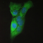 IF/ICC staining of FFPE human A431 cells with Amyloid beta antibody (green) at 2ug/ml and DAPI nuclear stain (blue). HIER: boil tissue sections in pH6, 10mM citrate buffer, for 10-20 min and allow to cool before testing.