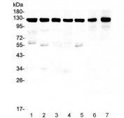 Western blot testing of human 1) HeLa, 2) U-87 MG, 3) T-47D, 4) A549, 5) U-2 OS, 6) rat brain and 7) mouse brain lysate with Amyloid beta antibody. Predicted molecular weight 79~120 kDa depending on glycosylation level.