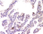 IHC staining of FFPE human renal cancer with Amyloid beta antibody at 1ug/ml. HIER: boil tissue sections in pH6, 10mM citrate buffer, for 10-20 min and allow to cool before testing.