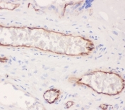 IHC-P: ACE antibody testing of human placenta tissue. HIER: boil tissue sections in pH6, 10mM citrate buffer, for 20 min and allow to cool before testing.