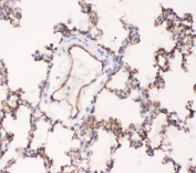 IHC-P testing of rat lung tissue with ACE antibody. HIER: boil tissue sections in pH6, 10mM citrate buffer, for 20 min and allow to cool before testing.