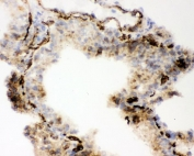 IHC staining of frozen mouse lung with ACE antibody.