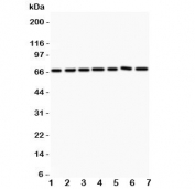 Western blot testing of ANG1 antibody and Lane 1:  HeLa;  2: MCF-7;  3: COLO320;  4: A549;  5: HEPG2;  6: 293T;  7: SW620.  Observed size 57~75KD depending on glycosylation level