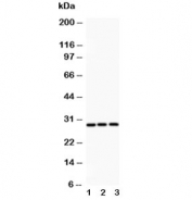 Western blot testing of ATF1 antibody and Lane 1:  rat spleen;  2: human HeLa;  3: human COLO320. Routinely observed molecular weight: 29-35 kDa.