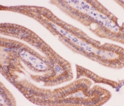 IHC testing of FFPE mouse intestine tissue with alpha Catenin antibody at 1ug/ml. Required HIER: steam section in pH6 citrate buffer for 20 min and allow to cool prior to staining.
