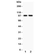 Western blot testing of LFA-1 antibody and Lane 1:  Jurkat;  2: CEM;  Predicted/Observed molecular weight: 85~95 kDa depending on glycosylation level.