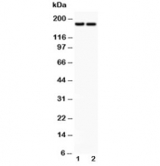 Western blot testing of Laminin antibody and Lane 1:  HeLa;  2: HEPG2 lysate. Expected molecular weight: 172-200 kDa (G1 & G3), 130-140 kDa (G2).