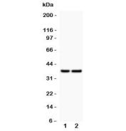 Western blot testing of CD79a antibody and Lane 1:  human placenta;  2: rat spleen; Predicted/Observed molecular weight: 25~47 kDa depending on glycosylation level