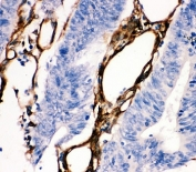 IHC staining of FFPE human intestinal cancer tissue with HSP27 antibody. HIER: boil tissue sections in pH6, 10mM citrate buffer, for 10-20 min and allow to cool before testing.