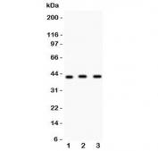 Western blot testing of CD147 antibody and Lane 1:  human placenta;  2: Jurkat;  3: U20S lysate.  Predicted molecular weight: ~27 kDa (unmodified), 43-66 kDa (glycosylated).