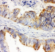 IHC-P: HIF-1 alpha antibody testing of human intestinal cancer tissue