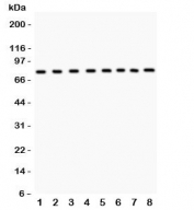 Western blot testing of MCM7 antibody and Lane 1:  rat brain;  2: human placenta;  3: mouse NIH3T3;  4: (h) HeLa;  5: (h) Jurkat;  6: (h) 22RV1;  7: (h) COLO320;  8: (r) PC12 lysate.  Expected size 80~90KD