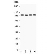 Western blot testing of TRPC7 antibody and Lane 1:  mouse brain;  2: human A549;  3: (h) COLO320;  4: (h) SKOV.  Expected size ~100KD