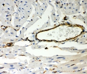 IHC-P: Vimentin antibody testing of mouse heart. Required HIER: Boil the paraffin sections in 10mM citrate buffer, pH6, for 20 min.
