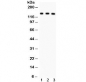 Western blot testing of 1) rat liver, 2) mouse liver and 3) human SMMC lysate with ABCB11 antibody. Expected/observed molecular weight ~146 kDa.