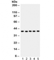 Western blot testing of 1) rat heart, 2) rat skeletal muscle, 3) mouse liver, human 4) MCF7 and 5) placenta lysate with SNAIL antibody. Predicted molecular weight ~29 kDa, observed here at ~39 kDa.