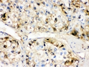 IHC testing of FFPE human liver cancer tissue with AHSG antibody. HIER: Boil the paraffin sections in pH 6, 10mM citrate buffer for 20 minutes and allow to cool prior to staining.