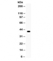 Western blot testing of human COLO320 cell lysate with WNT1 antibody. Expected/observed molecular weight ~41 kDa.