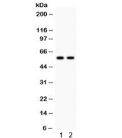 Western blot testing of 1) rat liver and 2) mouse liver lysate with CYP1A2 antibody. Predicted/observed molecular weight: ~58 kDa.