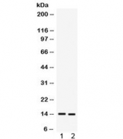 Western blot testing of 1) human A431 and 2) MCF7 cell lysate with S100A9 antibody. Expected/observed molecular weight ~14 kDa.