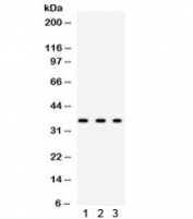 Western blot testing of human 1) HeLa, 2) 293 and 3 MCF7 lysate with SPARC antibody. Observed molecular weight: 35~43 kDa, depending on glycosylation level.