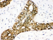 IHC testing of FFPE human breast cancer with Annexin A3 antibody. HIER: Boil the paraffin sections in pH 6, 10mM citrate buffer for 20 minutes and allow to cool prior to staining.