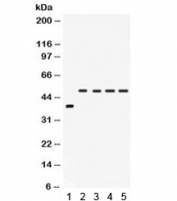 Western blot testing of 1) rat intestine and human 2) SW620, 3) COLO320, 4) HeLa and 5) A549 lysate with IRF2 antibody. Estimated molecular weight: ~39 kDa but routinely observed at 39-50 kDa.