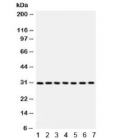 Western blot testing of 1) rat liver, 2) rat lung, 3) human HeLa, 4) A549, 5) MM231, 6) SW620 and 7) 22RV1 with NQO1 antibody. Predicted/observed molecular weight ~30 kDa.